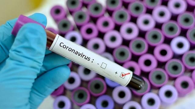 تحليل لفيروس كورونا