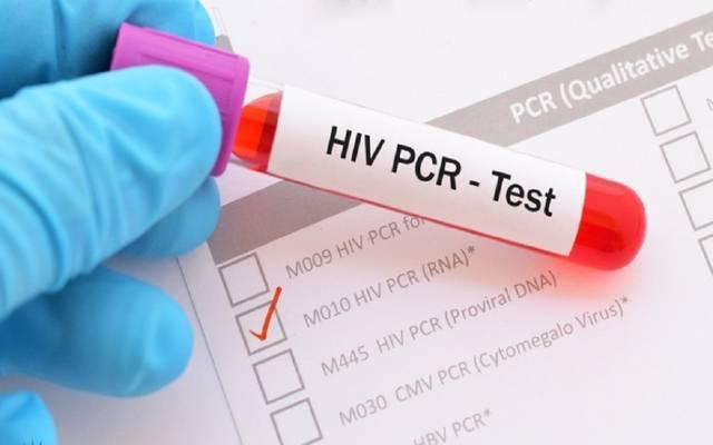 "فحص ""PCR"""