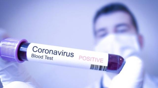 الإمارات تسجل 85 حالة جديدة مصابة بفيروس كورونا