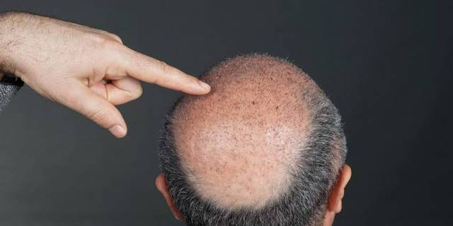 زراعة الشعر بتقنية السفير